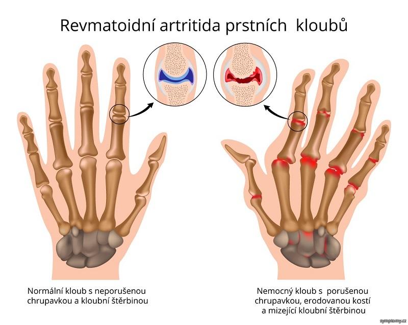 rwvmatoidní artritida