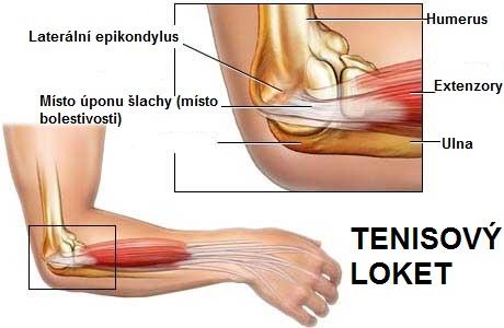 Tenisovy_loket